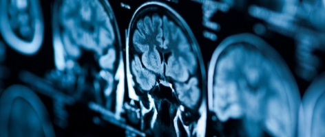 Artificial intelligence for the diagnosis of head and neck cancer